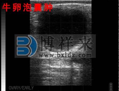 母牛卵泡囊肿B超影像图