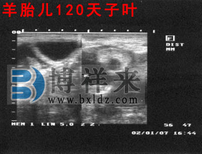 母羊怀孕120天超声影像图